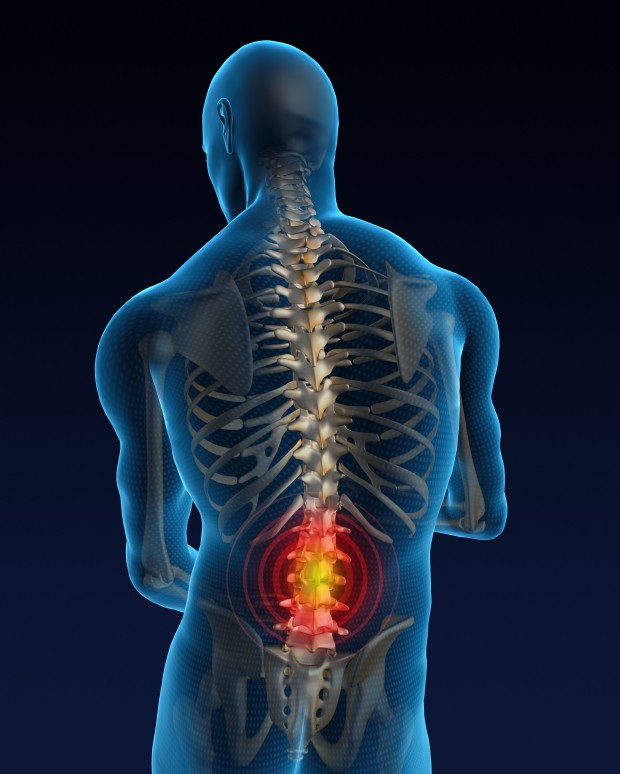 What About Back Pain?   One Regular Guy Writing about Food