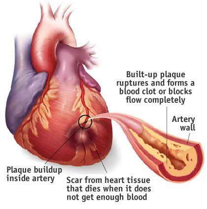 What Can I Do To Reduce My Chances of Heart Disease?   One ...
