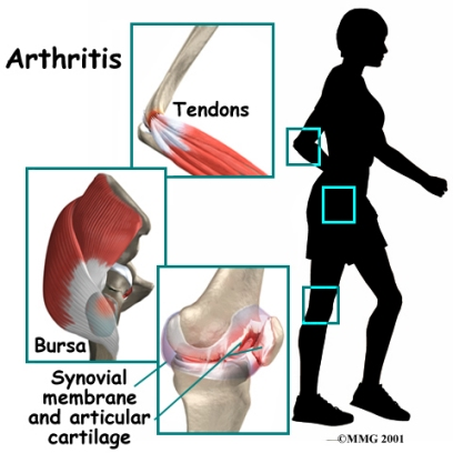 arthritis3-1