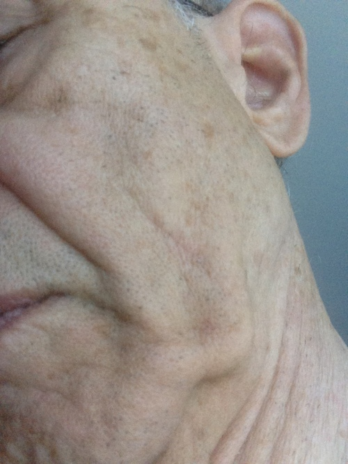 My scar today just short of 12 months after the operation