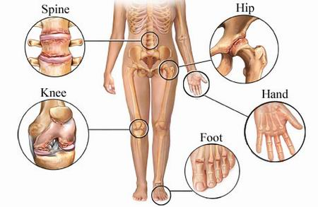 arthritis body
