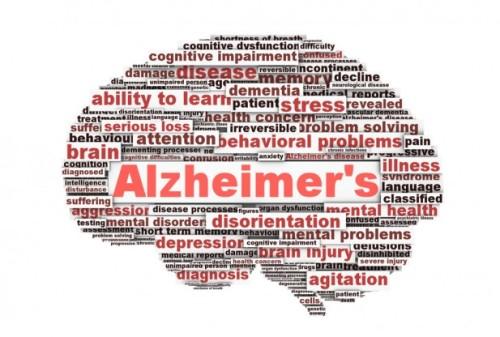 Alzheimer's-Disease-thinkstock-148044781-617x416