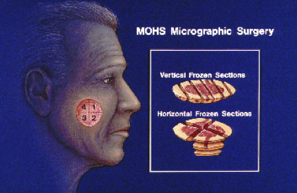This is how Mohs surgery works.