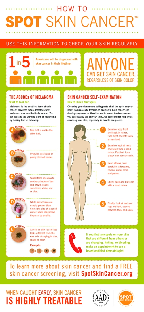How_to_SPOT_Skin_Cancer_Infographic1