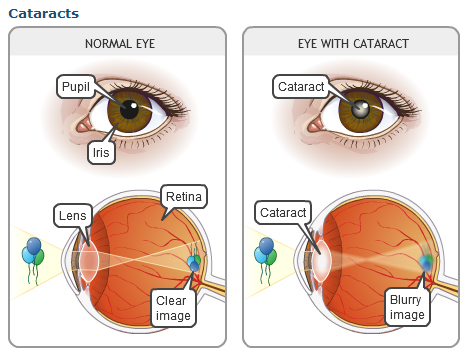 cataracts.jpg