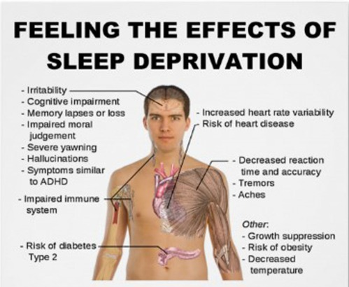 Sleep-Dep-1.jpg