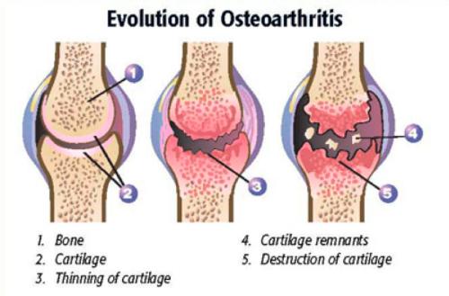 osteoarthritis_evolution.png