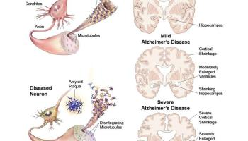Diet Plus Exercise Can Reduce Alzheimers Protein Build Ups UCLA Study Shows