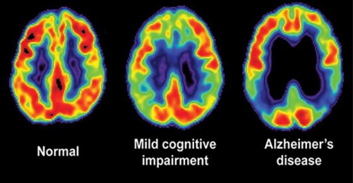 alzheimer-brain-scans