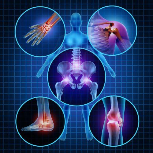 arthritis-pain-new-braunfels-seguin-austin-san-antonio-tx.jpg