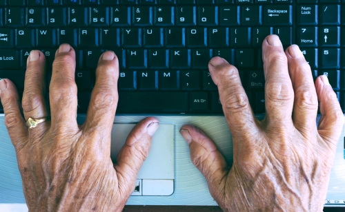 arthritis-in-hands.jpg