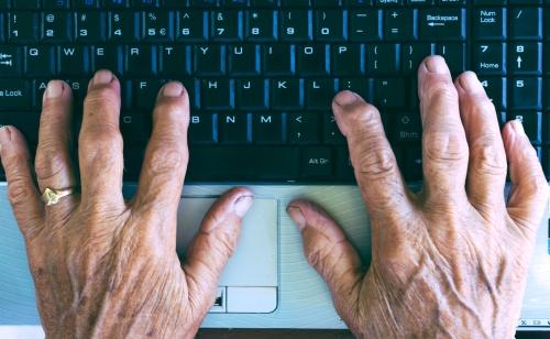arthritis-in-hands.jpg
