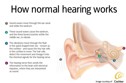 Normal_Hearing.jpg