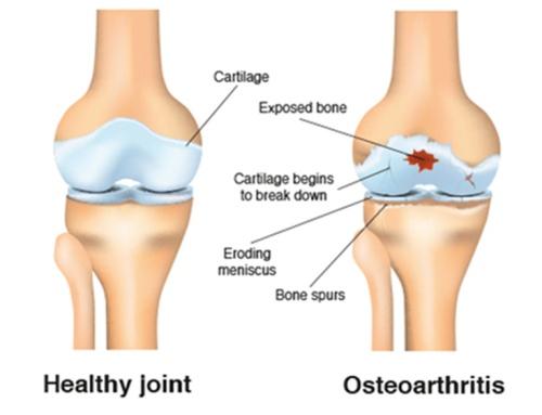 healthy-joint-osteoarthritis.jpg