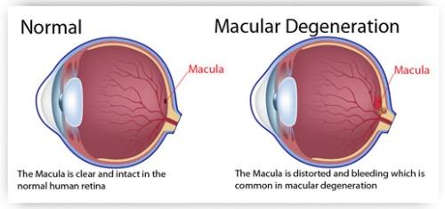 Macular-Degeneration-z.jpg