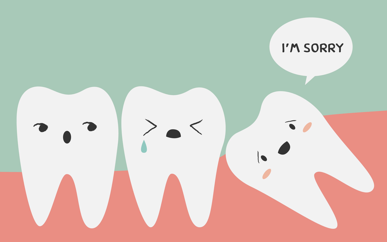 wisdom-teeth-1.jpg