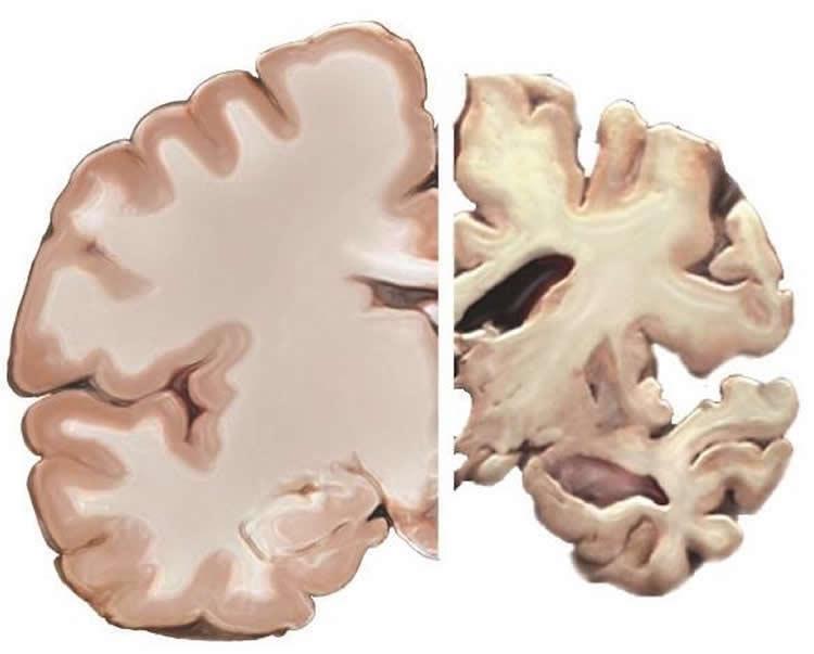 alzheimers-redefined-neurosciencenews-public.jpg