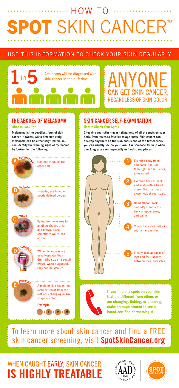 how_to_spot_skin_cancer_infographic1.jpg