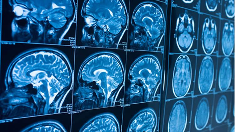 neuroimaging-social-exclusion-radicalization-neuroscineews