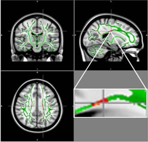 obese-teen-brain-damage-neurosciecnenews.jpg