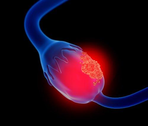 OvarianCancer(©Medistock - stock.adobe_.com)_1.jpeg